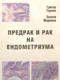 Предрак и рак на ендометриума